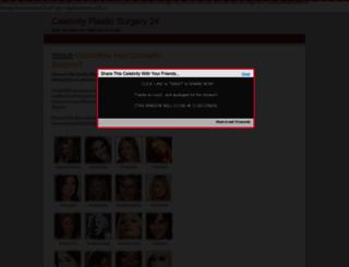 celebrityplasticsurgery24.com screenshot