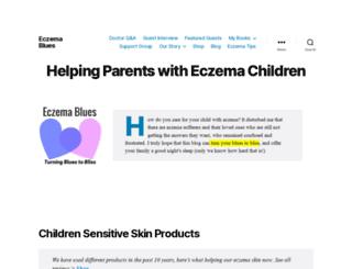 eczemablues.com screenshot