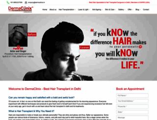 hairtransplantdelhi.dermaclinix.in screenshot