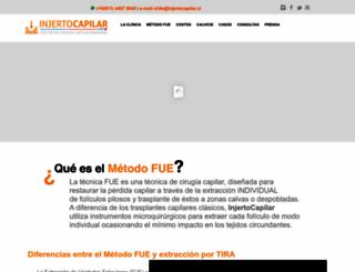 injertocapilar.cl screenshot