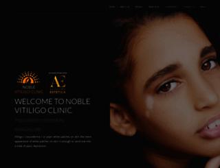 noblevitiligoclinic.com screenshot