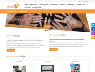 vitiligo.nl screenshot