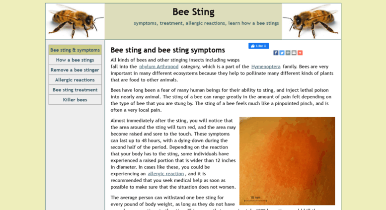 bee sting reactions local systemic and toxic drgreenecom - 777×423