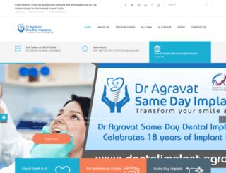 dentalimplant.agravat.com screenshot