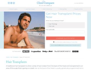 hairtransplant.cliniccompare.co.uk screenshot