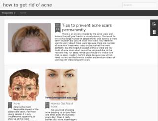 howtogetridof-acne.com screenshot