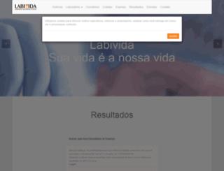 labivida.com.br screenshot