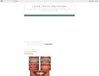 laser-teeth-whitening-pro.blogspot.com screenshot