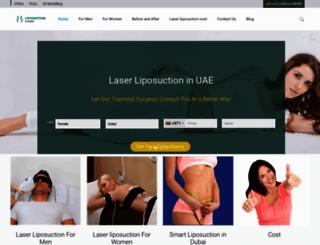 laserliposuctionindubai.com screenshot