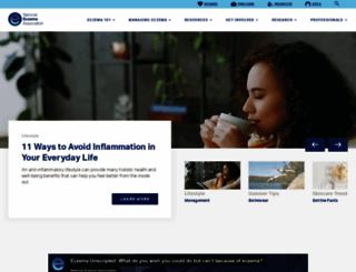nationaleczema.org screenshot