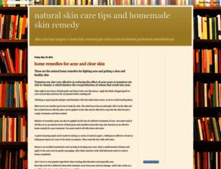 skincarenaturaly.blogspot.com screenshot