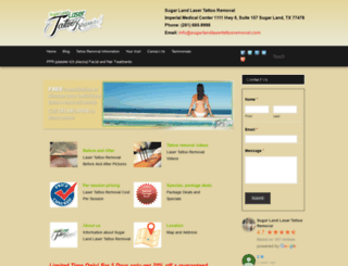 sugarlandlasertattooremoval.com screenshot