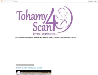 tohamy4dscan.blogspot.com screenshot