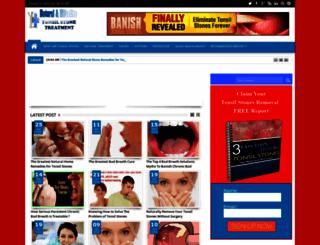 tonsilstones-treatment.blogspot.com screenshot