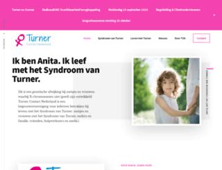 turnercontact.nl screenshot
