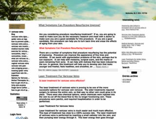 varicoseveins.ucoz.net screenshot